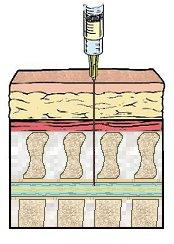 IV needle